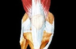 Patello-Femoral Joint Pain