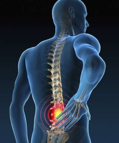 lower back pain physio