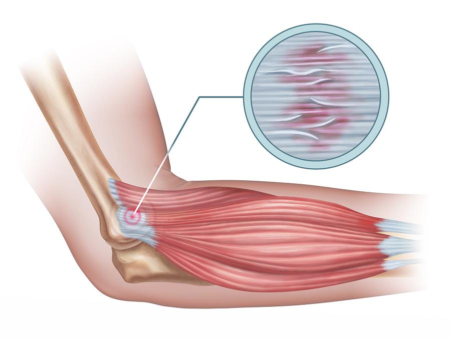 tennis elbow physio