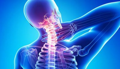 neck-pain physio