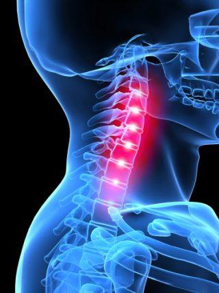 neck-pain physio