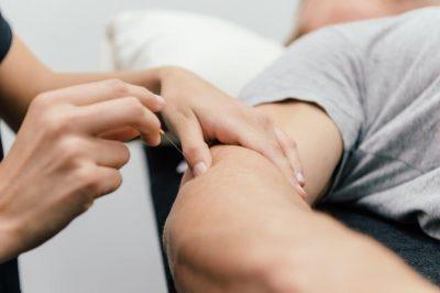 physio dry needling